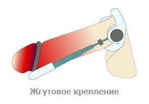 Жгутовое крепление