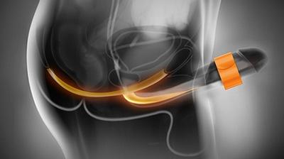 Укрепление мышц тазового дна мужчин