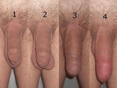 Экстендер до и после фото