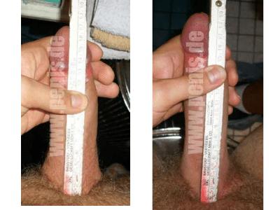 Рост полового члена